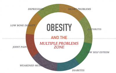 OBESITY AND LIIFESTYLE – AN EPIDEMIC ON THE RISE